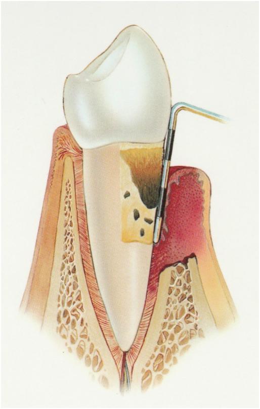 parodontologie parodontologie gencive parodontite cabinet dentaire docteur ludovic ha chirurgien-dentiste dentiste anglet blancpignon