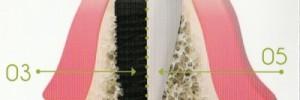 Implantologie implants implant dentaire ludovic ha dentiste anglet blancpignon