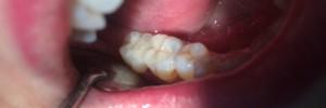 inlay onlay céramique cabinet ludovic ha dentiste anglet blancpignon