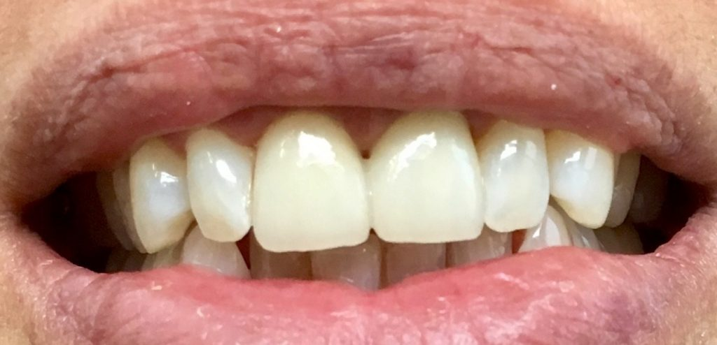 couronne dentaire zircone céramique prothèse esthétique cabinet docteur ludovic ha anglet biarritz bayonne pays basque blancpignon